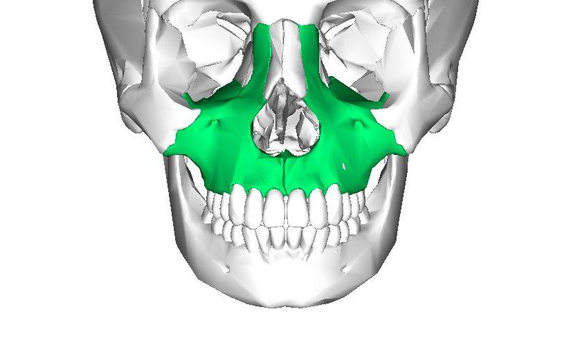 Maxilar superior (Glosario BQDC)