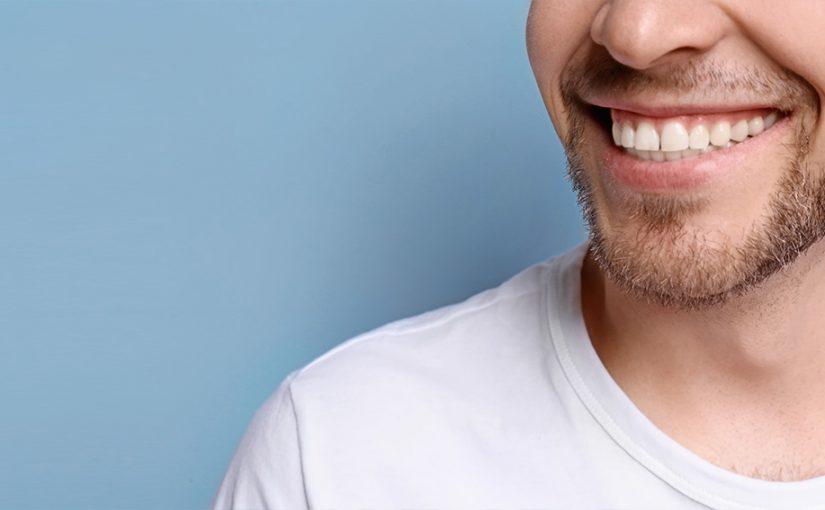 Precauciones sobre el blanqueamiento dental casero