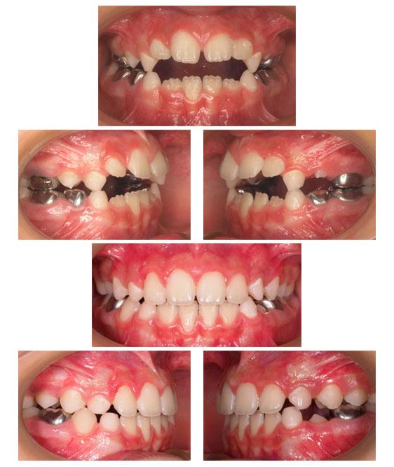 Figura de Mordida Abierta dentaria por habito de succión del pulgar