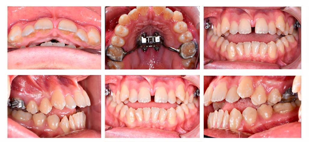 Mordida cruzada, caso clínico de Clínica dental El Parque Bilbao