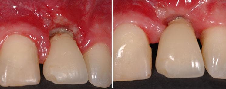 Mucositis antes y después