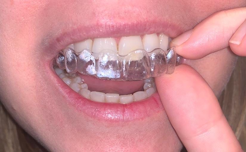 Ortodoncia correctiva en niños y adultos, Glosario BQDC
