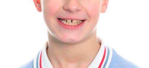 Tratamiento de ortodoncia interceptiva. Caso clínico: antes