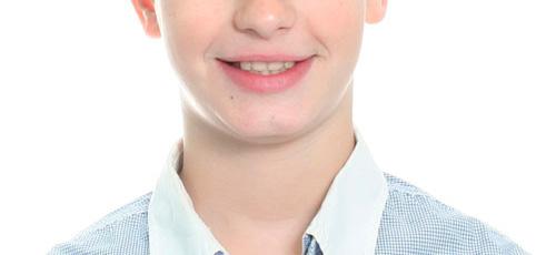 Tratamiento de ortodoncia interceptiva. Caso clínico: después