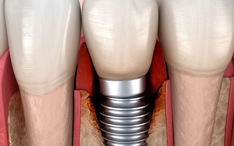 Periimplantitis, enfermedad periodontal en implantes dentales