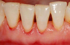Periodontitis en dientes inferiores, Glosario BQDC