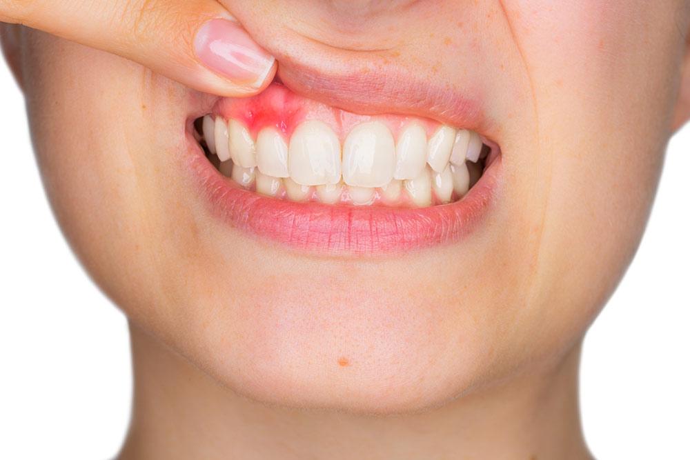 Se contagian la periodontitis y gingivitis