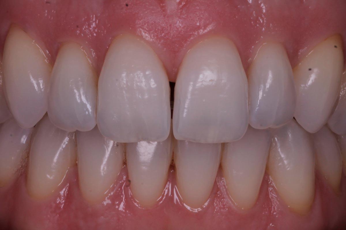 Placa dental imperceptible