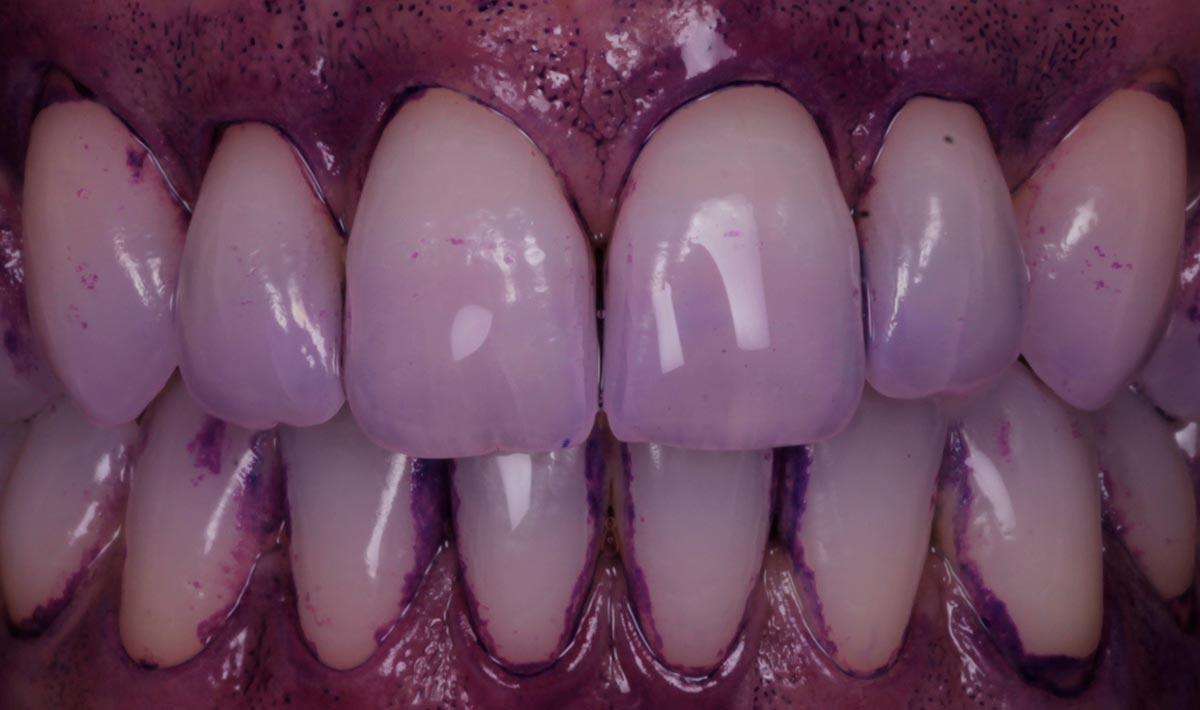 Placa dental tintada y visible