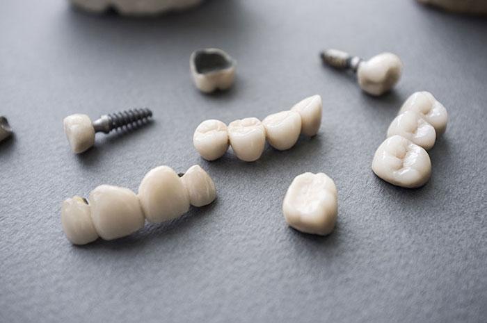 pontico prótesis dental