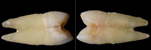 Premolares, Xavier Vela (BQDC)