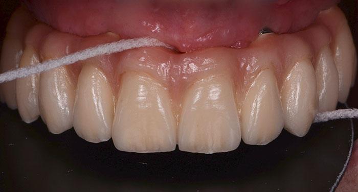 Prótesis Prostodoncia