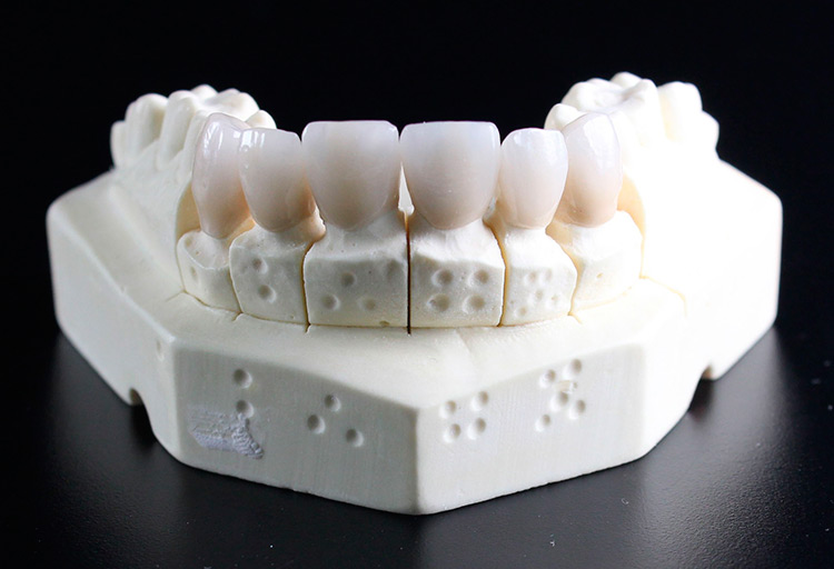 Prótesis dental e implantes dentales