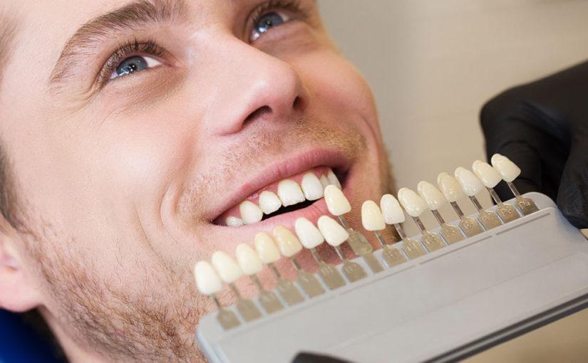 protocolo-blanqueamiento-dental