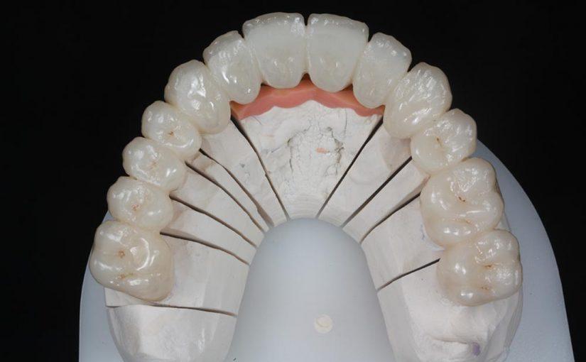 Puente dental sobre implantes