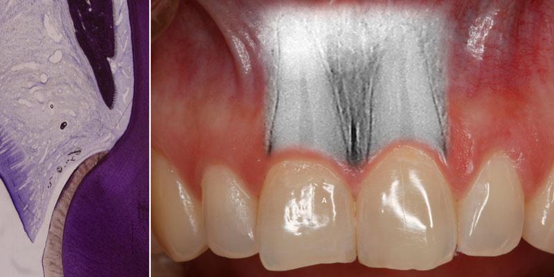 ¿Qué es el periodonto?