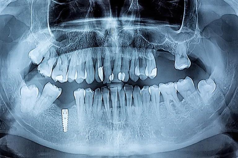 Radiografía implante dental