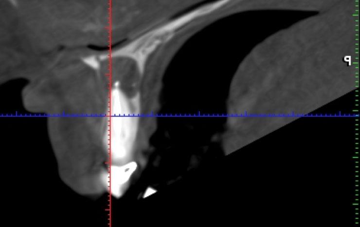 Radiografía periápice 3
