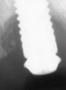 Radiografía periimplantitis