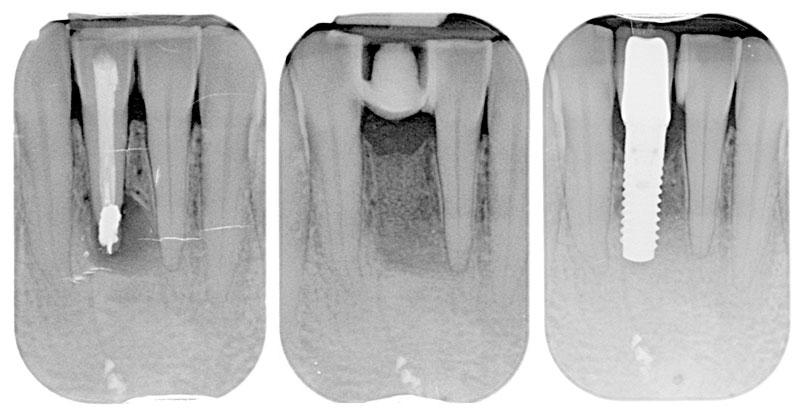 Radiografía intraoral de un quiste dental