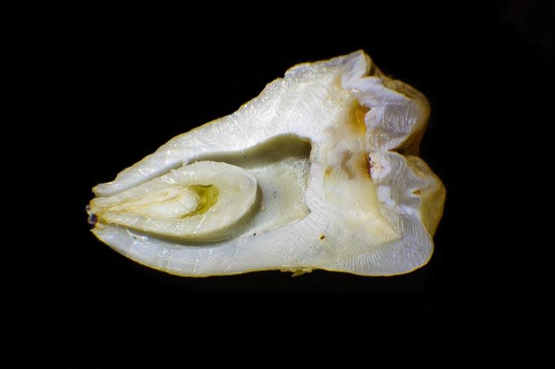 Raíz dentaria, aspecto de un diente partido por la mitad