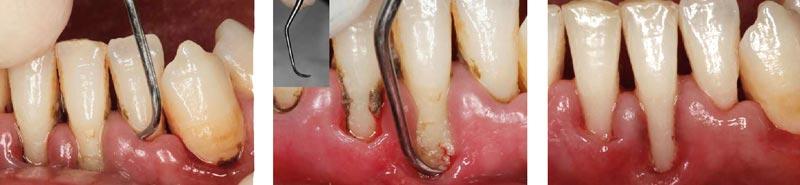 Raspado dental, Glosario BQDC
