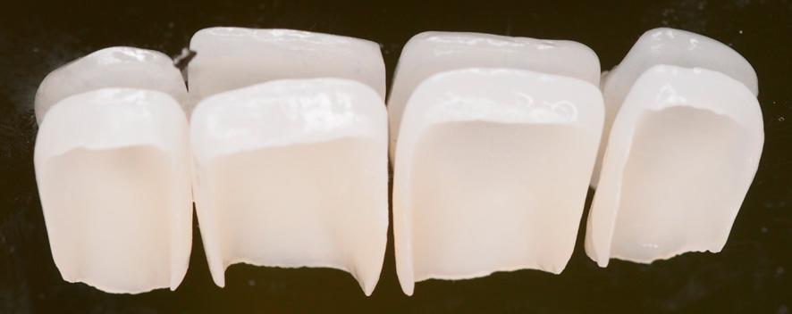Revestimientos - carillas dentales (Glosario BQDC)