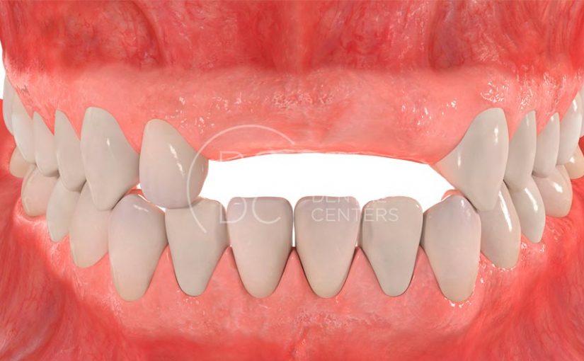Ausencia de varios dientes