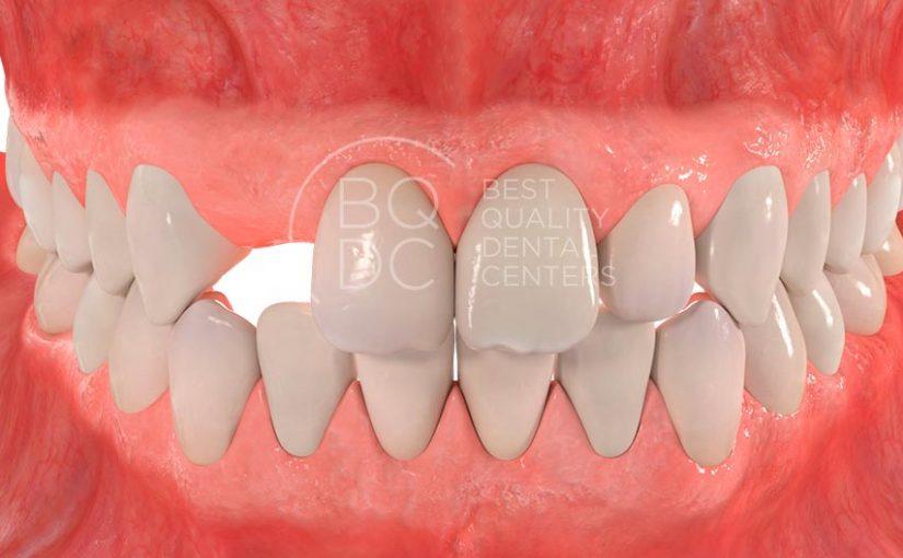 Ausencia de un diente