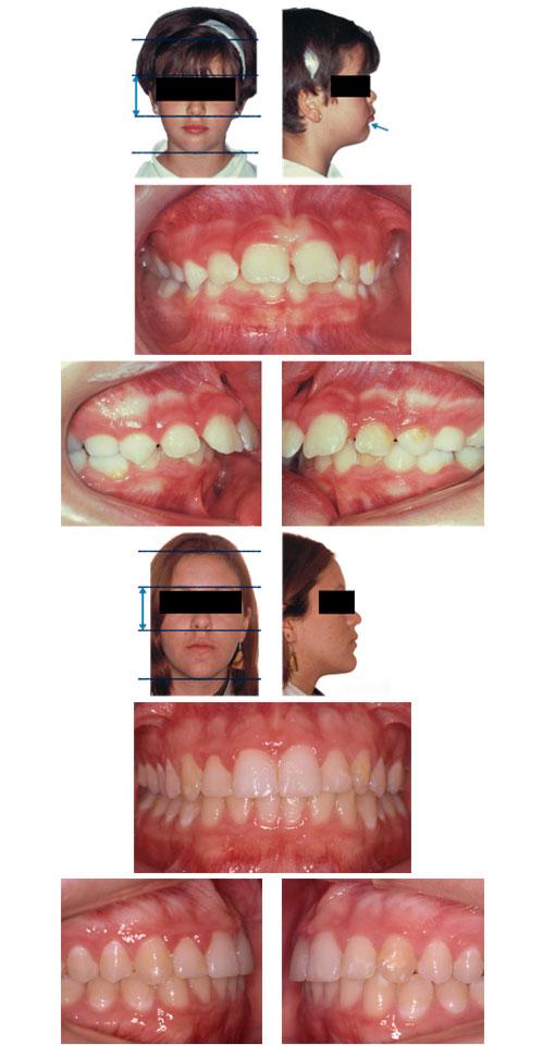 Figura de una clase II/ 1ª con sobremordida y tratamiento
