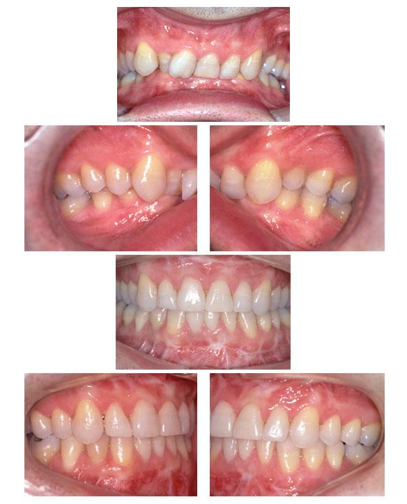 Figura de una clase II/2º y tratamiento con cirugía ortognática