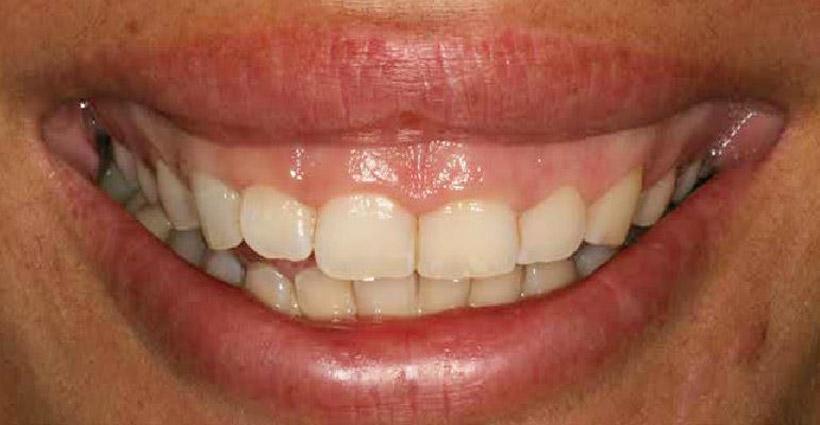 Sonrisa gingival, Glosario BQDC