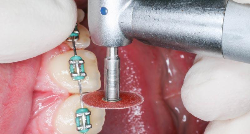 Stripping con ortodoncia