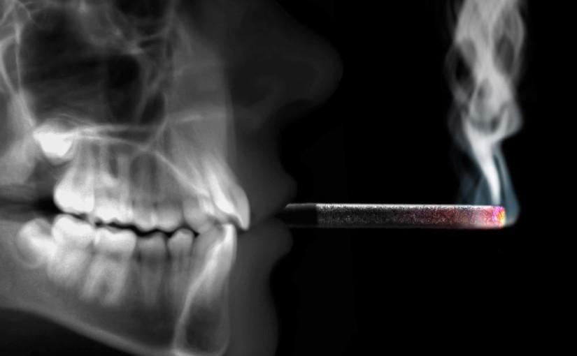 Relación entre la salud oral y el tabaco