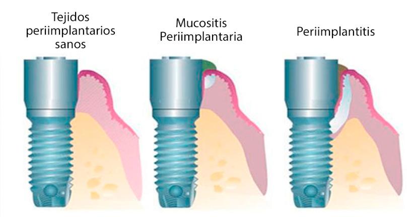 Mucositis y periimplantitis cómo afectan a los implantes