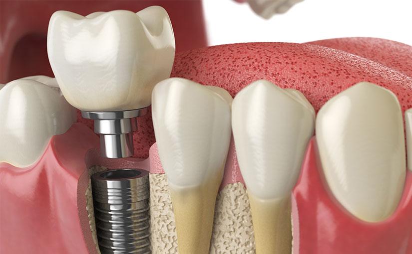 Todo sobre los implantes de carga inmediata