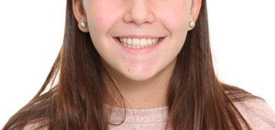 Tratamiento correctivo en adolescentes. Caso clínico: después