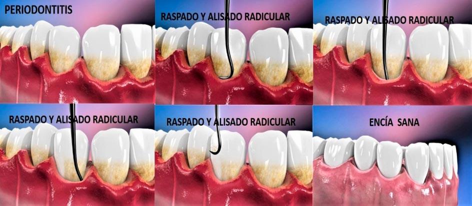 Tratamiento de las enfermedades periodontales