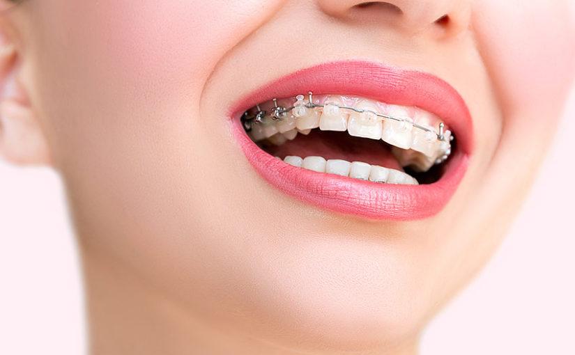 Tratamiento ortodoncia periodoncia