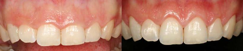 Antes y después de la sonrisa gingival, Glosario BQDC