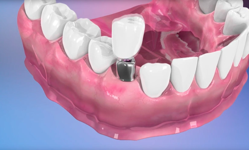 Vídeo explicativo sobre implantes dentales